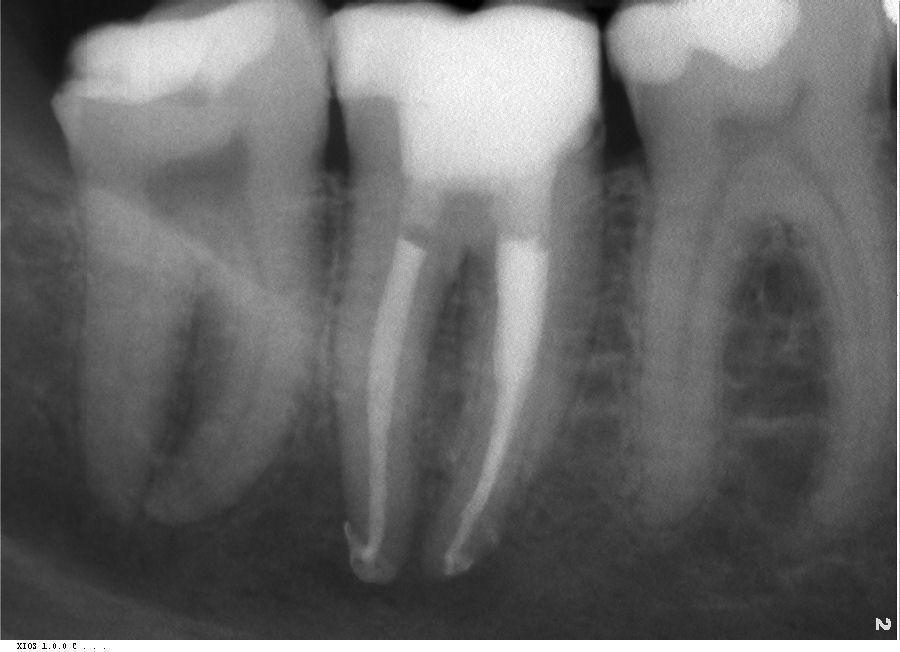 Wurzelbehandlung beim Zahnarzt in Bonn-Poppelsdorf